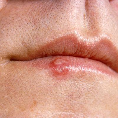 Những dấu hiệu đơn giản cảnh báo có thể bạn nhiễm HIV 13