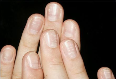 Dấu hiệu bệnh qua màu sắc móng tay 11