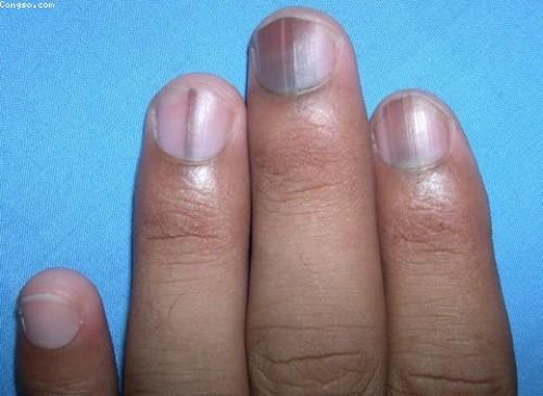 Dấu hiệu bệnh qua màu sắc móng tay 14