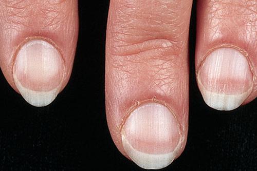 Dấu hiệu bệnh qua màu sắc móng tay 1