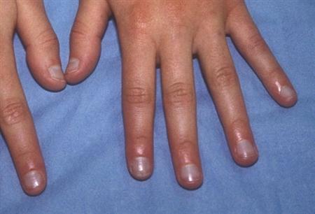 Dấu hiệu bệnh qua màu sắc móng tay 4