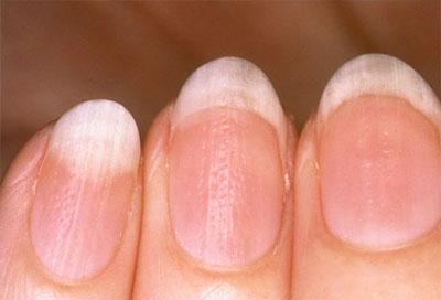 Dấu hiệu bệnh qua màu sắc móng tay 5