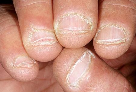 Dấu hiệu bệnh qua màu sắc móng tay 9