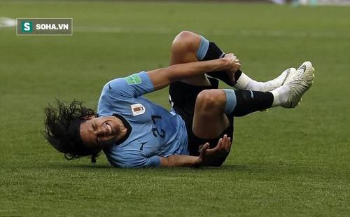 """HLV tuyển Pháp đã có cách """"bắt chết"""" Cavani nhưng vẫn e ngại vũ khí đáng sợ của Uruguay"""