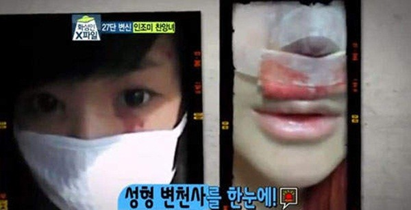 Hàn Quốc: Cô nàng mặt nhọn như người ngoài hành tinh 5