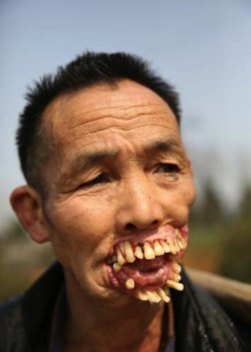 Người đàn ông răng mọc ra ngoài vì sói dại liếm miệng