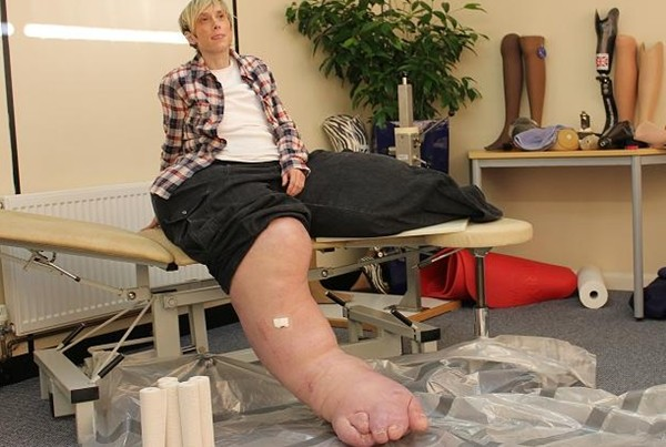 Người phụ nữ có... chân to hơn người 1