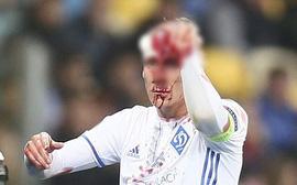 Sao Croatia va chạm ghê rợn, đổ máu ướt hết mặt mới chịu rời sân